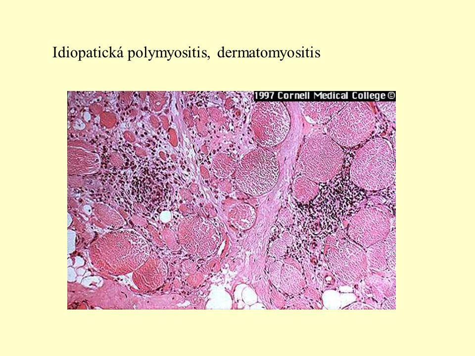 Idiopatická polymyositis, dermatomyositis
