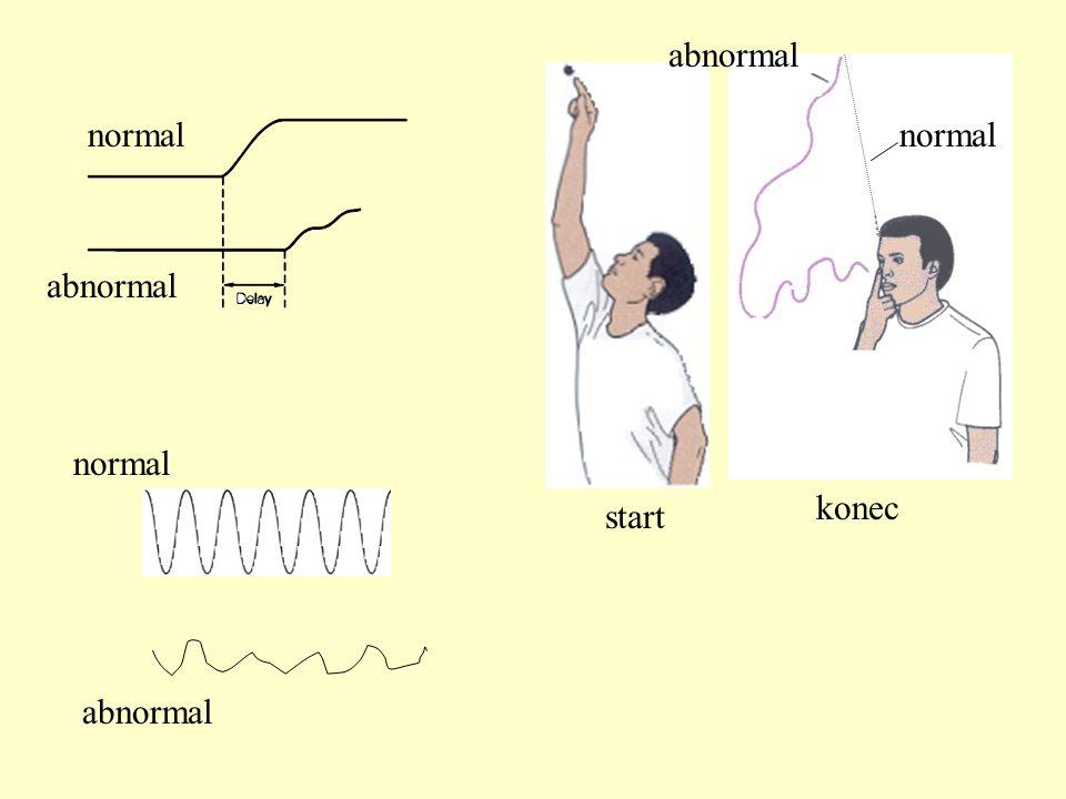 start konec normal abnormal normal abnormal
