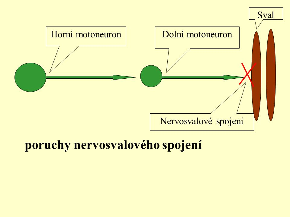 Horní motoneuronDolní motoneuron Sval Nervosvalové spojení poruchy nervosvalového spojení
