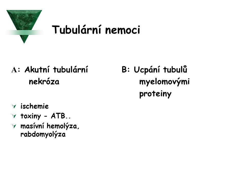 Tubulární nemoci A : Akutní tubulární nekróza  ischemie  toxiny - ATB..  masívní hemolýza, rabdomyolýza B: Ucpání tubulů myelomovými proteiny