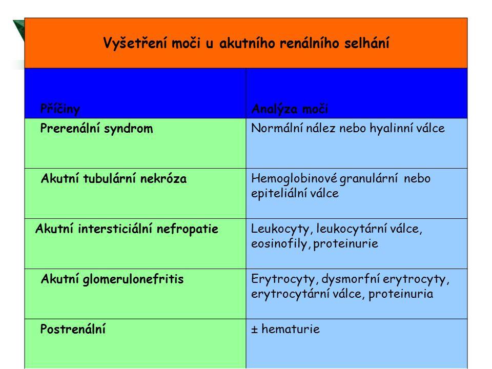 Vyšetření moči u akutního renálního selhání PříčinyAnalýza moči Prerenální syndromNormální nález nebo hyalinní válce Akutní tubulární nekrózaHemoglobi