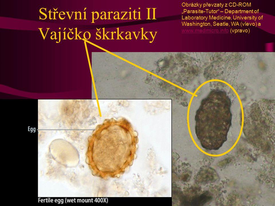 """Střevní paraziti II Vajíčko škrkavky Obrázky převzaty z CD-ROM """"Parasite-Tutor"""" – Department of Laboratory Medicine, University of Washington, Seatle,"""
