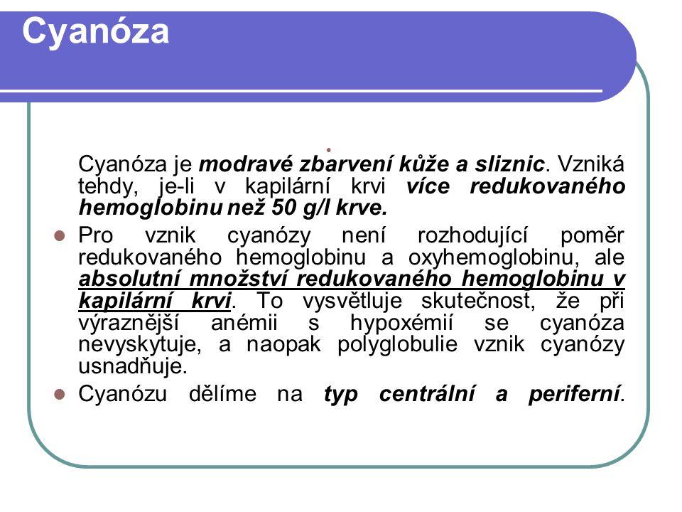 Cyanóza Cyanóza je modravé zbarvení kůže a sliznic.
