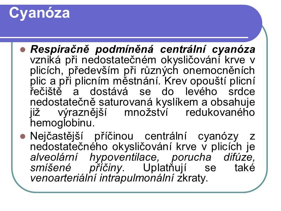 Cyanóza Respiračně podmíněná centrální cyanóza vzniká při nedostatečném okysličování krve v plicích, především při různých onemocněních plic a při plicním městnání.