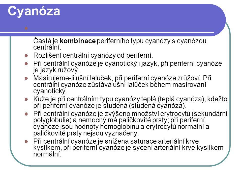 Cyanóza Častá je kombinace periferního typu cyanózy s cyanózou centrální.