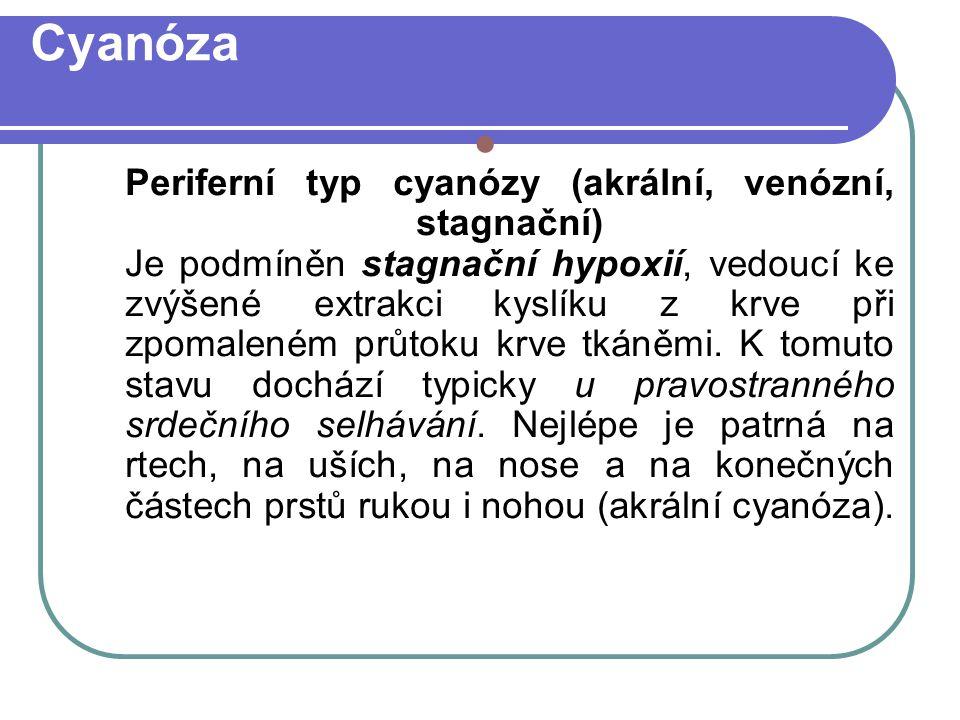 Cyanóza Periferní typ cyanózy (akrální, venózní, stagnační) Je podmíněn stagnační hypoxií, vedoucí ke zvýšené extrakci kyslíku z krve při zpomaleném průtoku krve tkáněmi.