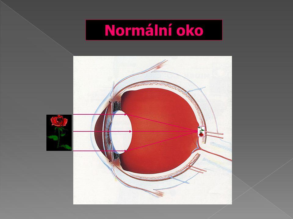  Hypermetropie – paprsky se sbíhají za sítnicí  Myopie – paprsky se sbíhají před sítnicí  Astigmatismus – optický systém oka nemá ve všech meridiánech stejnou optickou mohutnost