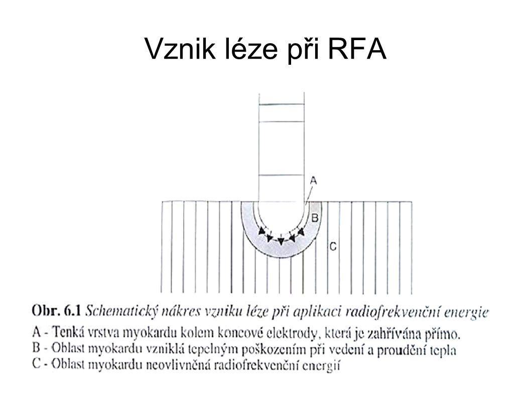 Vznik léze při RFA