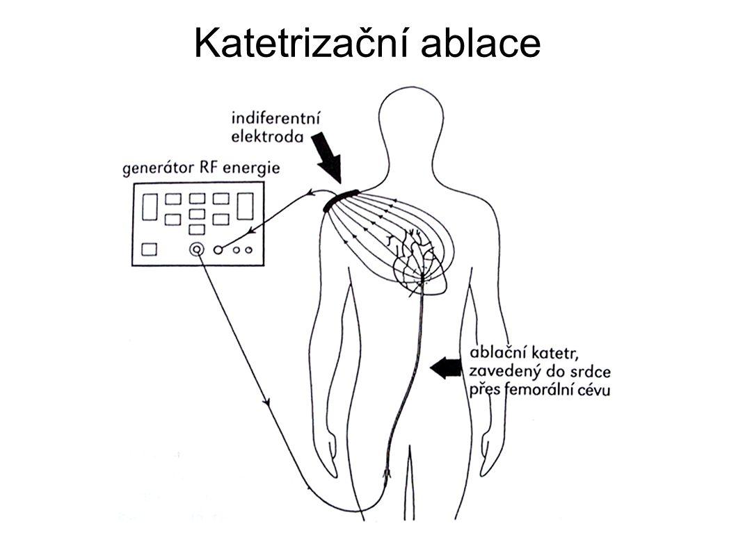 Katetrizační ablace