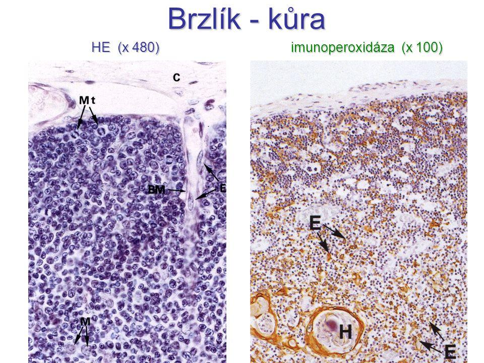 Brzlík - kůra HE (x 480) imunoperoxidáza (x 100)