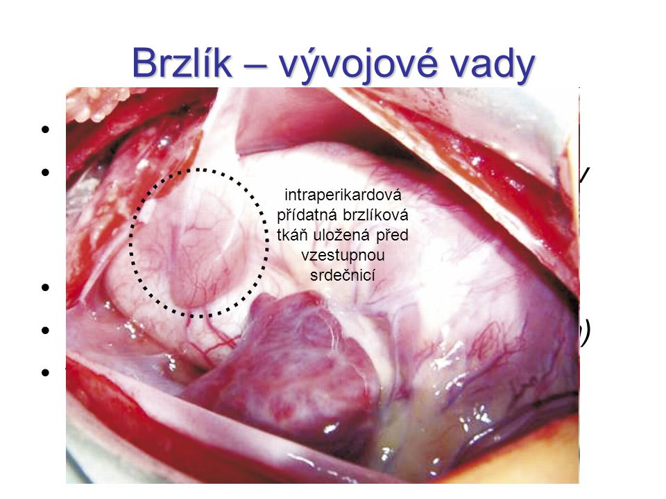 Brzlík – vývojové vady aplasia thymi aplasia thymoparathyroidea (DiGeorgův syndrom) –málo B-, žádné T-lymfocyty ectopia thymi hypoplasia thymi (Sprint