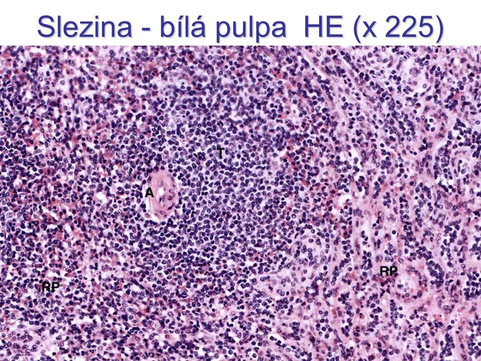 Slezina - bílá pulpa HE (x 225)