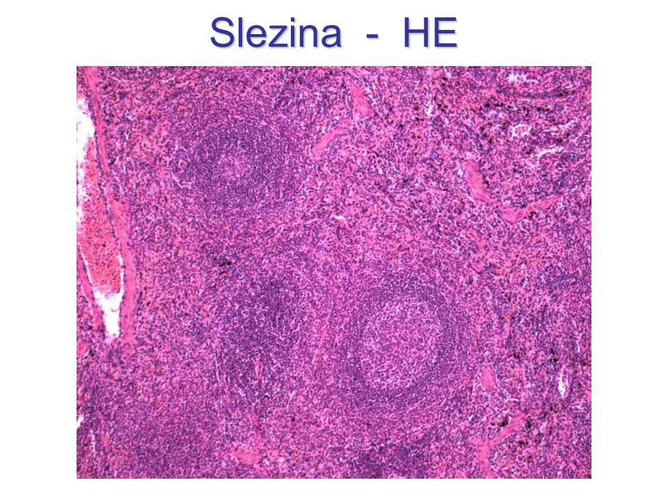 Slezina - HE
