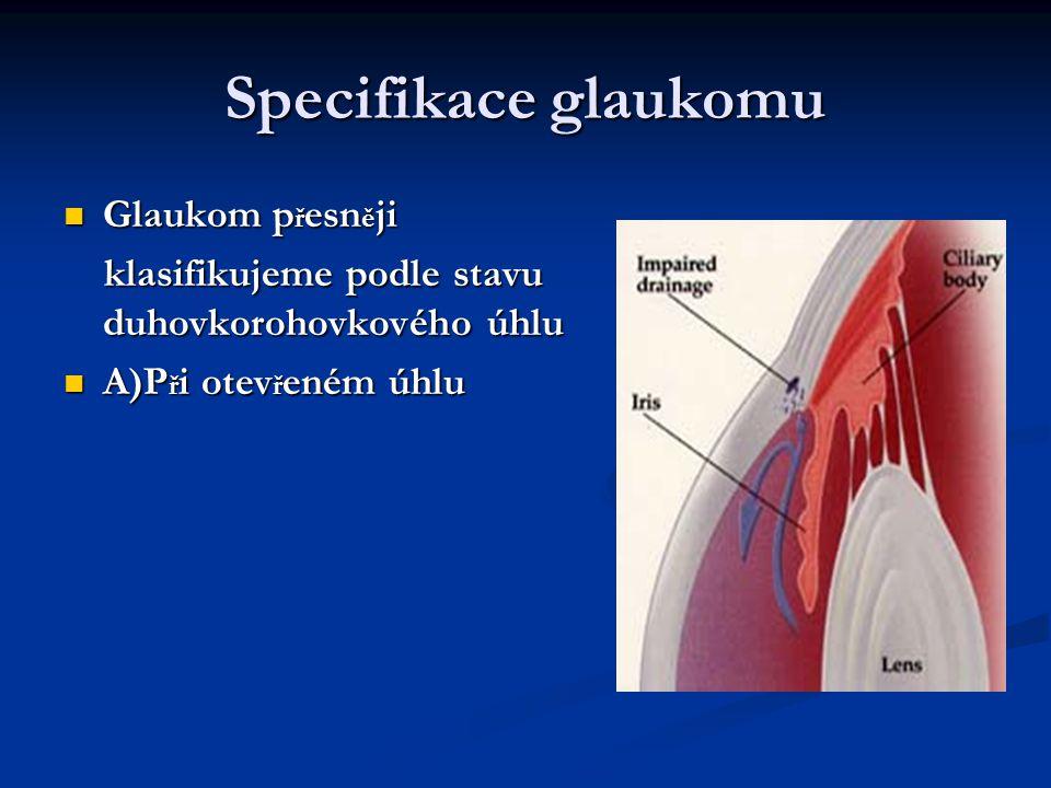 Specifikace glaukomu B) P ř i uzav ř eném úhlu B) P ř i uzav ř eném úhlu