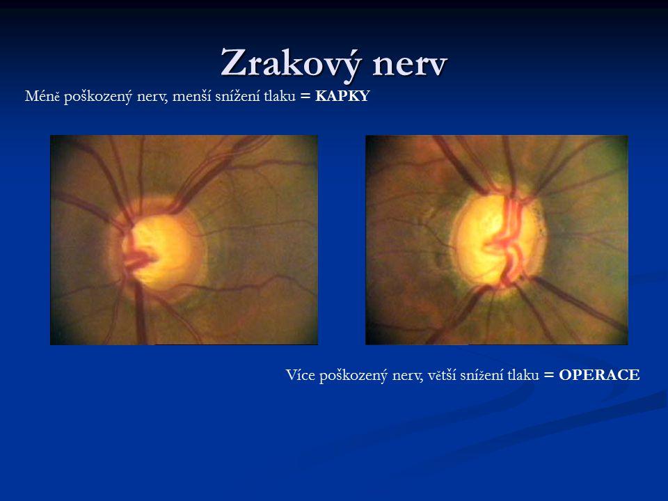 Zrakový nerv Mén ě poškozený nerv, menší snížení tlaku = KAPKY Více poškozený nerv, v ě tší sní ž ení tlaku = OPERACE