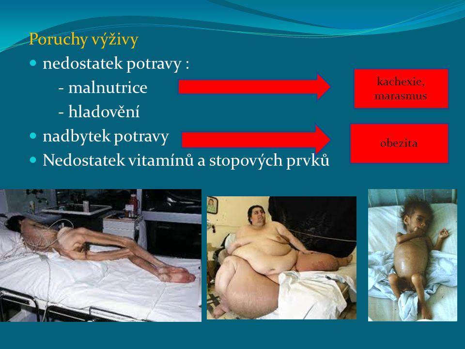 Poruchy výživy nedostatek potravy : - malnutrice - hladovění nadbytek potravy Nedostatek vitamínů a stopových prvků obezita kachexie, marasmus