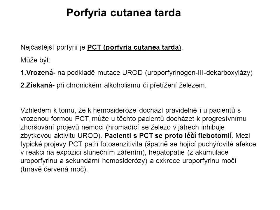 Porfyria cutanea tarda Nejčastější porfyrií je PCT (porfyria cutanea tarda). Může být: 1.Vrozená- na podkladě mutace UROD (uroporfyrinogen-III-dekarbo