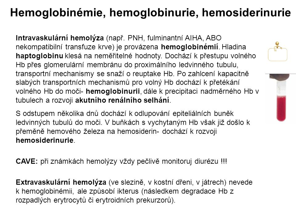 Hemoglobinémie, hemoglobinurie, hemosiderinurie Intravaskulární hemolýza (např. PNH, fulminantní AIHA, ABO nekompatibilní transfuze krve) je provázena