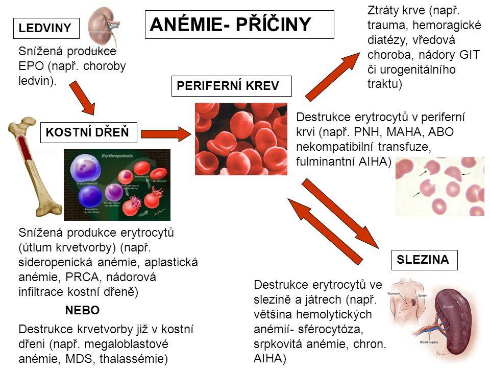 ANÉMIE- PŘÍČINY KOSTNÍ DŘEŇ PERIFERNÍ KREV SLEZINA Snížená produkce erytrocytů (útlum krvetvorby) (např. sideropenická anémie, aplastická anémie, PRCA