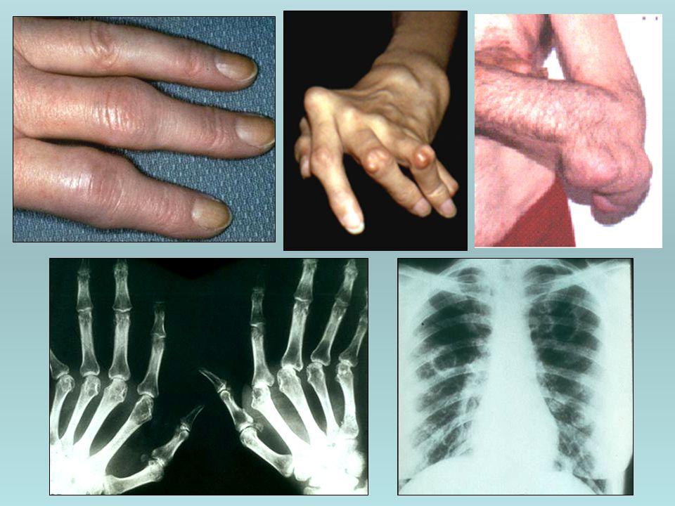 Revmatoidní artritida Průběh onemocnění : 1.