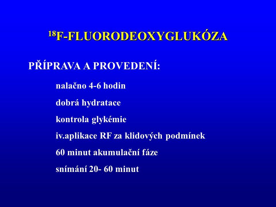 18 F-FLUORODEOXYGLUKÓZA PŘÍPRAVA A PROVEDENÍ: nalačno 4-6 hodin dobrá hydratace kontrola glykémie iv.aplikace RF za klidových podmínek 60 minut akumul