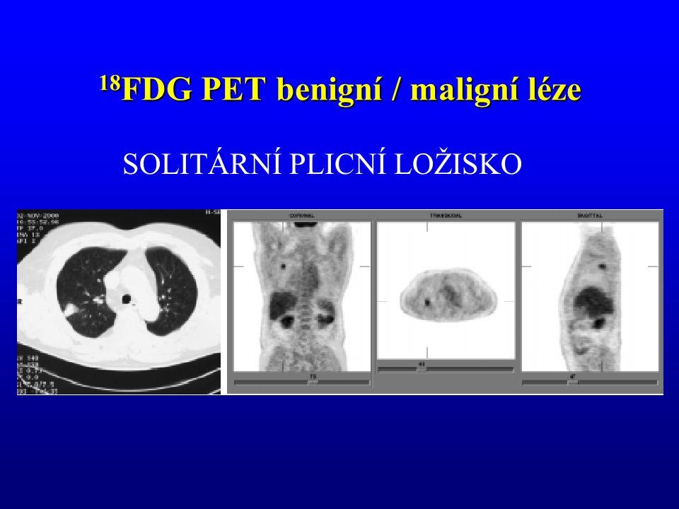 18 FDG PET benigní / maligní léze SOLITÁRNÍ PLICNÍ LOŽISKO