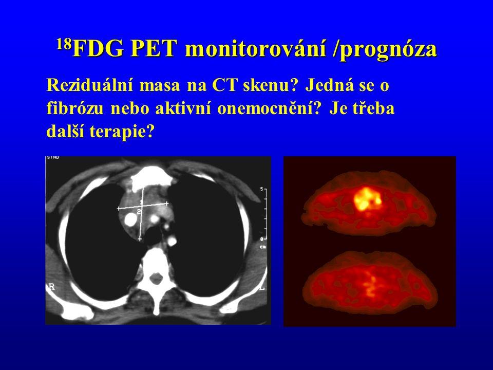 18 FDG PET monitorování /prognóza Reziduální masa na CT skenu? Jedná se o fibrózu nebo aktivní onemocnění? Je třeba další terapie?