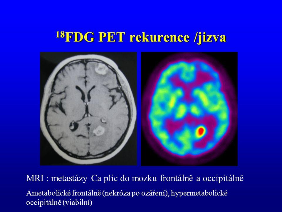 18 FDG PET rekurence /jizva MRI : metastázy Ca plic do mozku frontálně a occipitálně Ametabolické frontálně (nekróza po ozáření), hypermetabolické occ