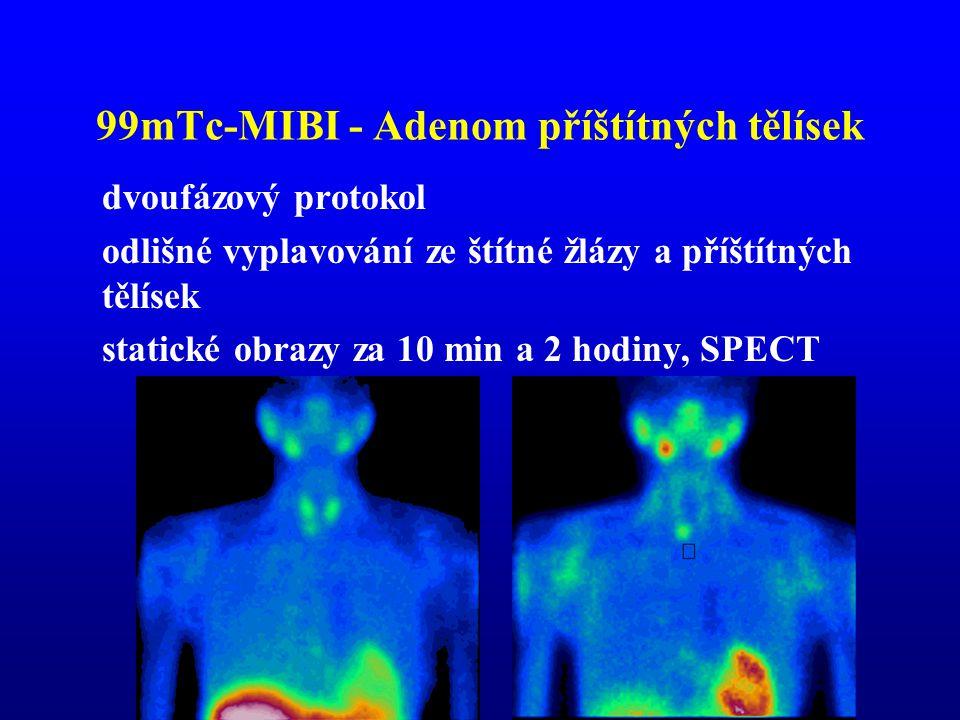 99mTc-MIBI - Adenom příštítných tělísek dvoufázový protokol odlišné vyplavování ze štítné žlázy a příštítných tělísek statické obrazy za 10 min a 2 ho