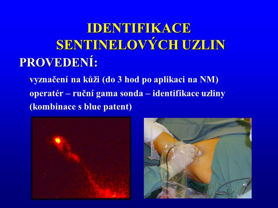 IDENTIFIKACE SENTINELOVÝCH UZLIN PROVEDENÍ: vyznačení na kůži (do 3 hod po aplikaci na NM) operatér – ruční gama sonda – identifikace uzliny (kombinac