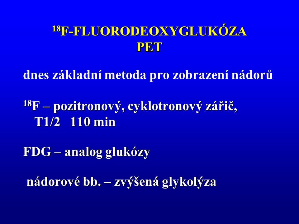 18 F-FLUORODEOXYGLUKÓZA PET dnes základní metoda pro zobrazení nádorů 18 F – pozitronový, cyklotronový zářič, T1/2 110 min FDG – analog glukózy nádoro