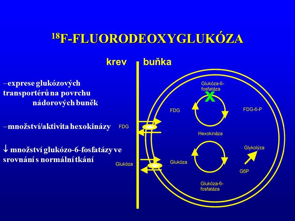 123 I-, 131 I- METAJODBENZYLGUANIDIN INDIKACE:SENZITIVITA Feochromocytom 80-90 % (MEN 2, nonsekreční) 60-70 % Karcinoid 50-60 % Paragangliom 40-60 % MTC 30 %