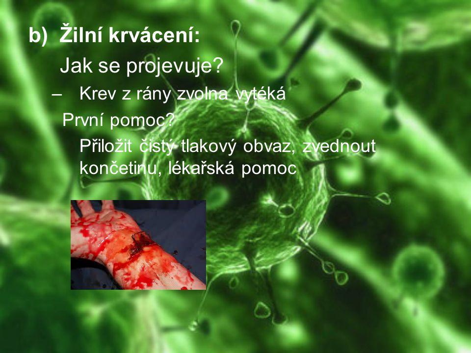 b)Žilní krvácení: Jak se projevuje? –Krev z rány zvolna vytéká První pomoc? Přiložit čistý tlakový obvaz, zvednout končetinu, lékařská pomoc
