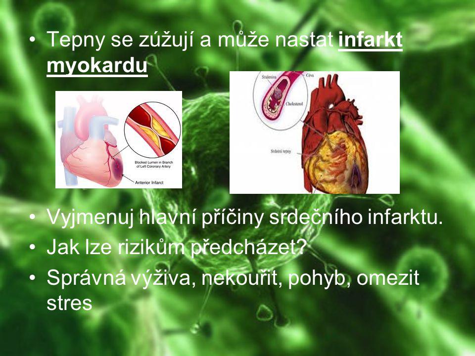 – aterosklerózou jsou postiženy tepny zajišťující výživu mozku Ve většině civilizovaných zemích je ateroskleróza nejčastější příčinou úmrtí.
