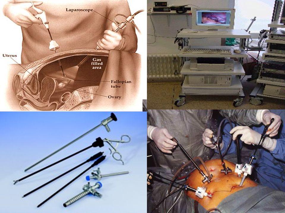 Užití v praxi  Diagnostické i léčebné metody  Možno aplikovat na jakékoli tělní dutině  Operace žlučníku, břišních kýl  Diagnostická laparoskopie při bolestech břicha nejasného původu  Velké spektrum gynekologických zákroků