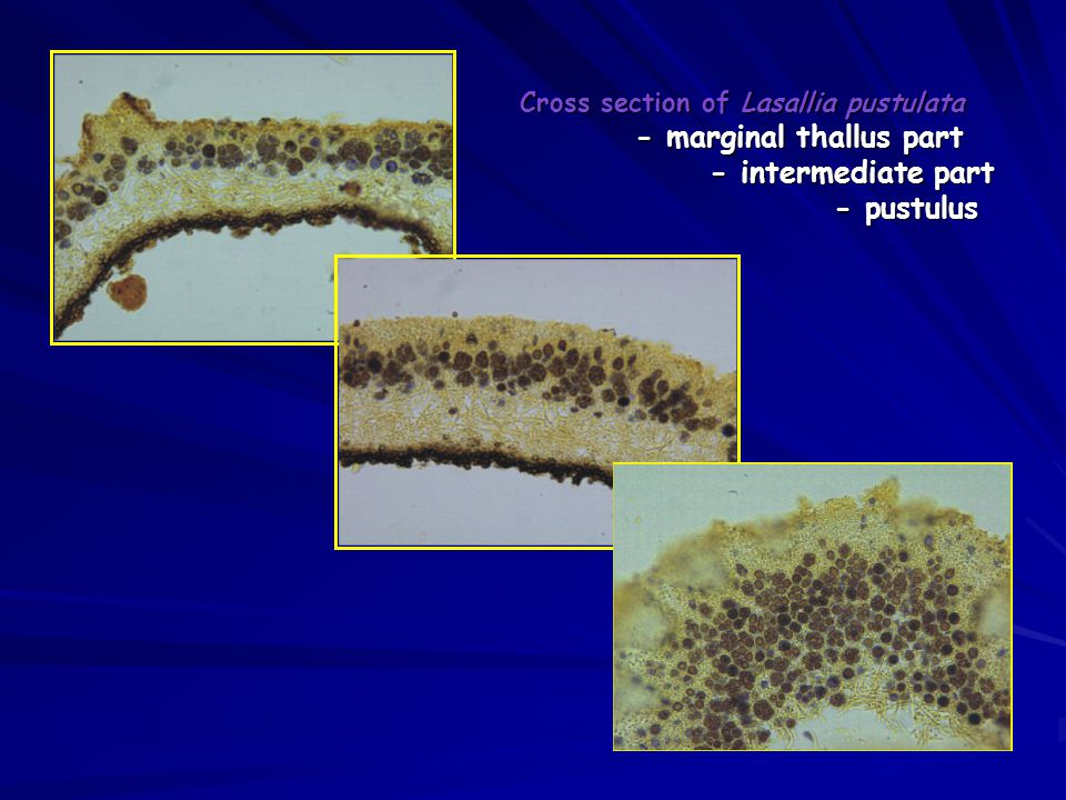 Cross section of Lasallia pustulata - marginal thallus part - intermediate part - pustulus