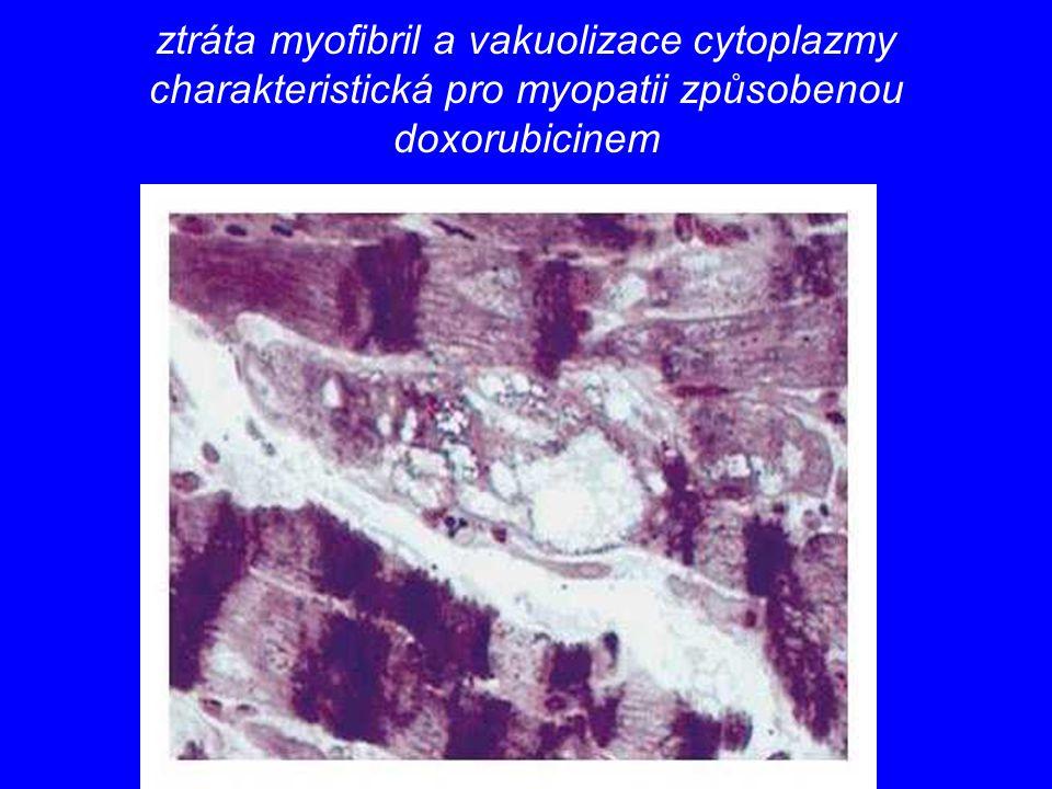 ztráta myofibril a vakuolizace cytoplazmy charakteristická pro myopatii způsobenou doxorubicinem