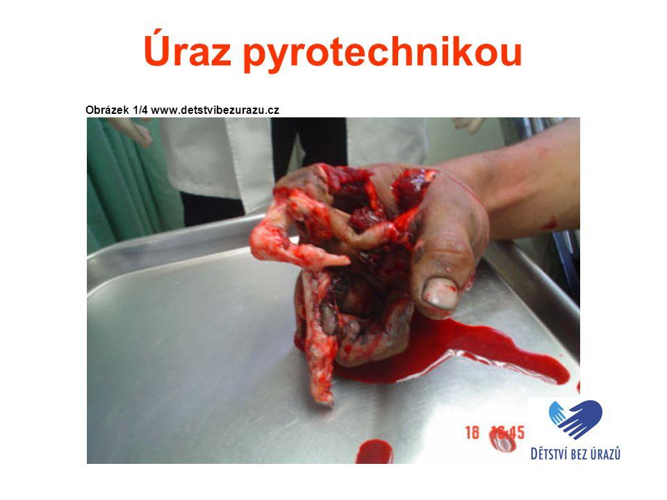 Úraz pyrotechnikou Obrázek 1/4 www.detstvibezurazu.cz