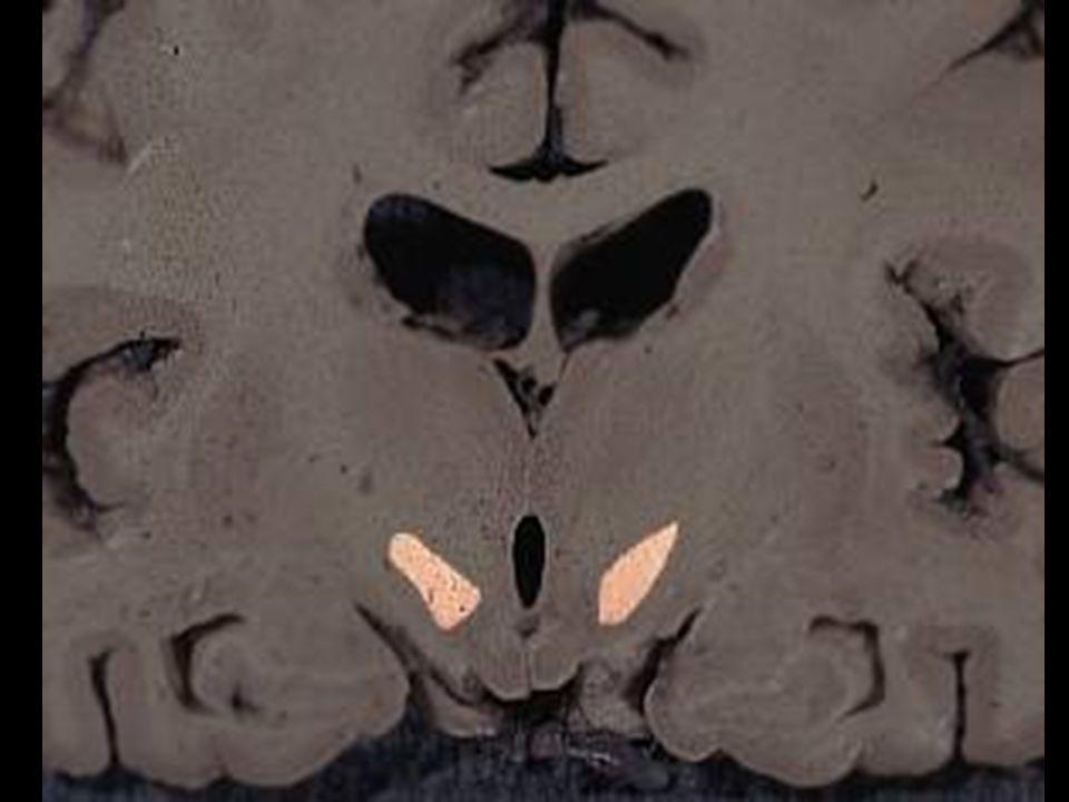 """Thalamus (thalamus dorsalis) """"sekretářka mozku  vše kromě čichu pulvinar (dorzálně) tuberculum anterius (ventrálně) lamina medullaris medialis + lateralis thalami adhesio interthalamica (80 %) – bez významu jádra se rozdělují se podle polohy nebo zapojení –nuclei anteriores, dorsales, intralaminares, mediani, mediales, posteriores, ventrales, reticularis –specifická senzorická jádra –specifická nesenzorická jádra –nespecifická jádra –asociační jádra"""