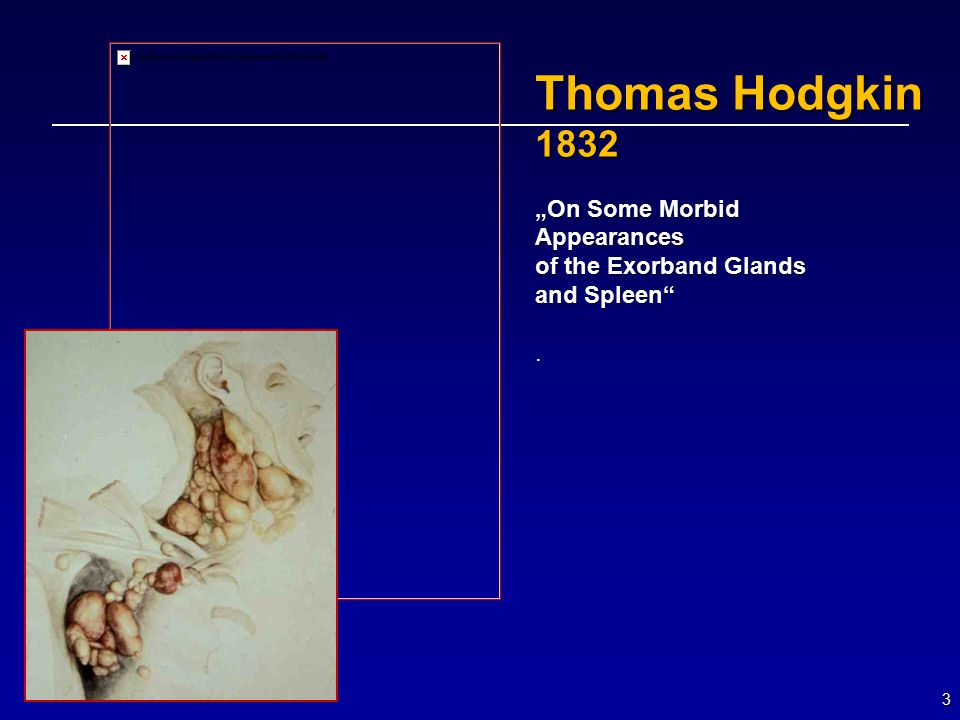 "3 Thomas Hodgkin 1832 ""On Some Morbid Appearances of the Exorband Glands and Spleen ."