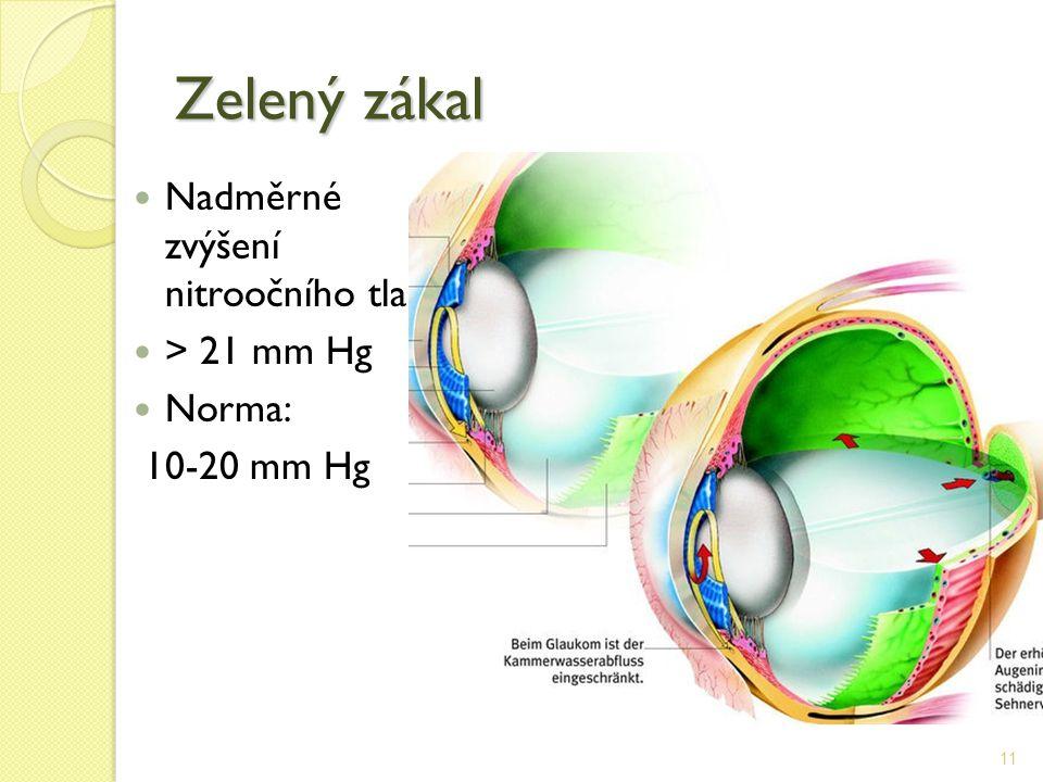 Zelený zákal Nadměrné zvýšení nitroočního tlaku > 21 mm Hg Norma: 10-20 mm Hg 11