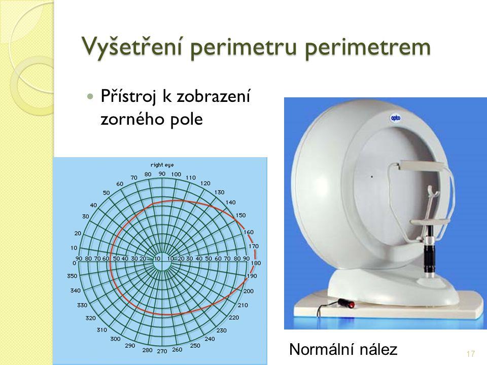Vyšetření perimetru perimetrem Přístroj k zobrazení zorného pole 17 Normální nález