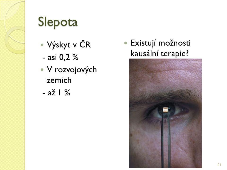 Slepota Výskyt v ČR - asi 0,2 % V rozvojových zemích - až 1 % Existují možnosti kausální terapie? 21
