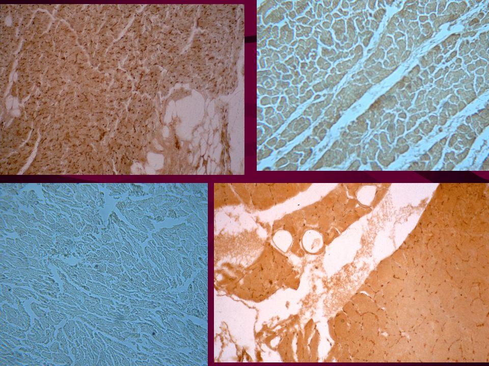 Stanovení krevní skupiny z tkání imunohistochemicky (HISTOTEST) Využití: u zemřelých s hnilobnou dekompozicí, u bezkrevných tkání apod.
