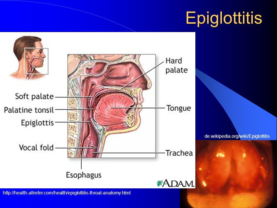 Epiglottitis http://health.allrefer.com/health/epiglottitis-throat-anatomy.html de.wikipedia.org/wiki/Epiglottitis