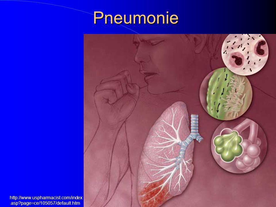 Pneumonie http://www.uspharmacist.com/index.asp?page=ce/105057/default.htm