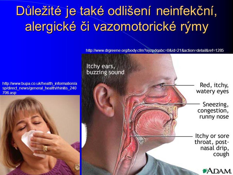 Důležité je také odlišení neinfekční, alergické či vazomotorické rýmy http://www.bupa.co.uk/health_information/a sp/direct_news/general_health/rhiniti