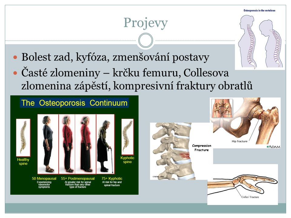 Projevy Bolest zad, kyfóza, zmenšování postavy Časté zlomeniny – krčku femuru, Collesova zlomenina zápěstí, kompresivní fraktury obratlů