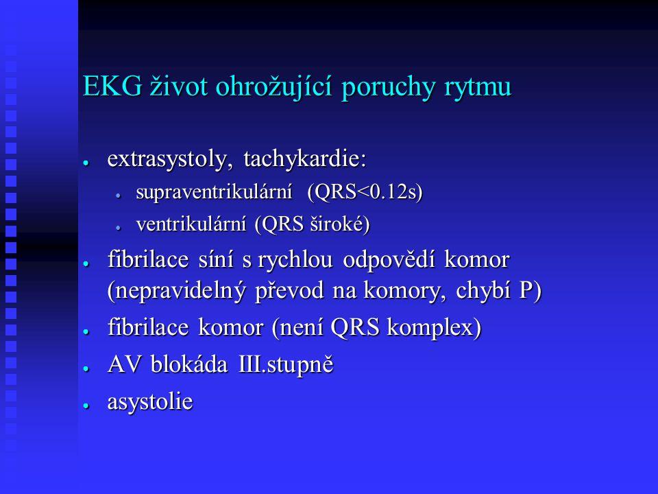 EKG život ohrožující poruchy rytmu ● extrasystoly, tachykardie: ● supraventrikulární (QRS<0.12s) ● ventrikulární (QRS široké) ● fibrilace síní s rychl