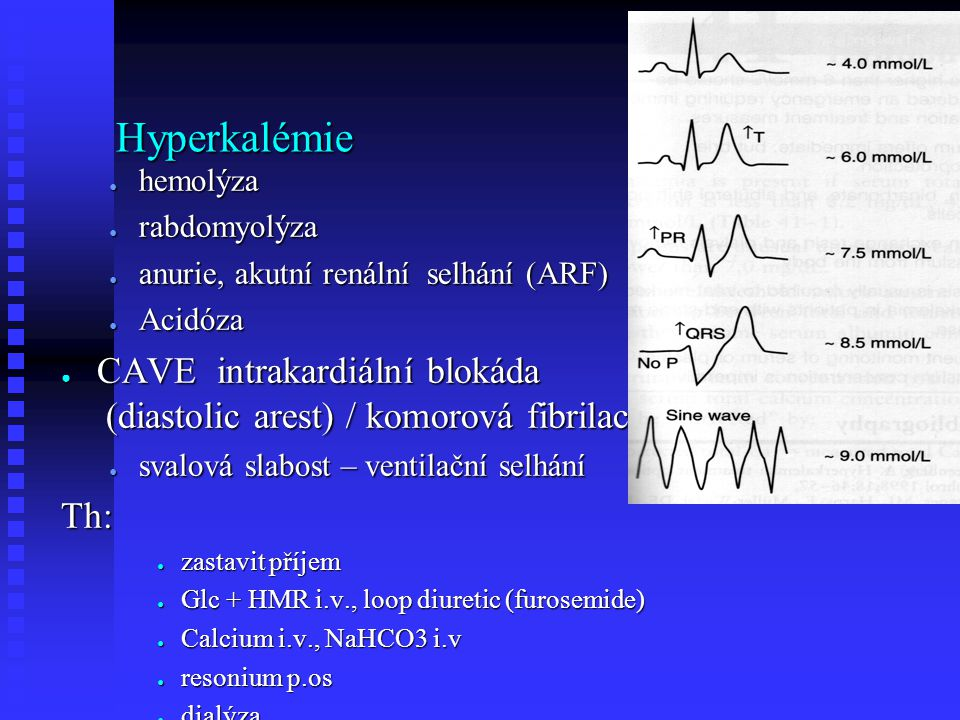 Hyperkalémie ● hemolýza ● rabdomyolýza ● anurie, akutní renální selhání (ARF) ● Acidóza ● CAVE intrakardiální blokáda (diastolic arest) / komorová fib